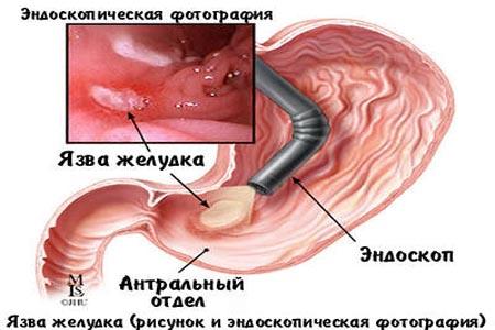 ФГС ФГДС фиброгастроскопия фиброгастродуоденоскопия  Например в случае острой необходимости гастроскопия желудка может проводиться даже при инфаркте миокарда в анамнезе В случае же желудочного кровотечения